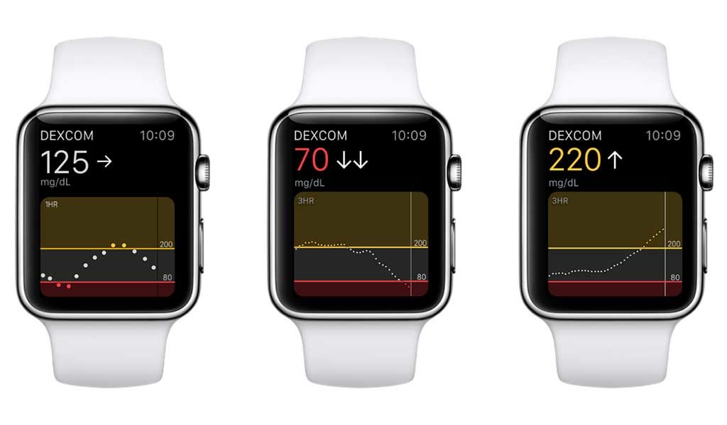 Dexcom iWatch App for Glucose Monitoring